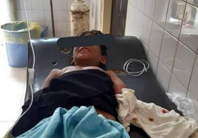 حمله تمساح به پسربچه بلوچستانی +عکس